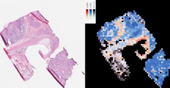 Is AI the Key to Diving Deeper into Images and Pathology?