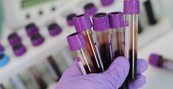 Liquid Biopsy's Saga Continues with New Financing