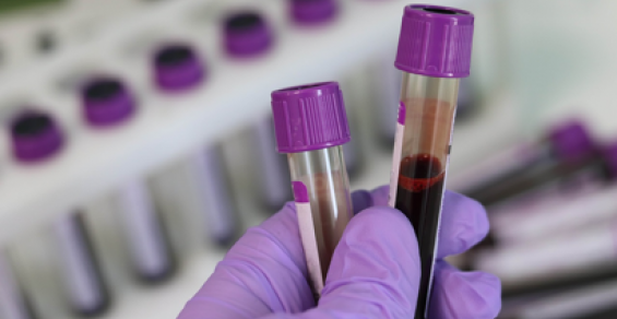 Liquid Biopsy Tests Are Becoming More Mainstream