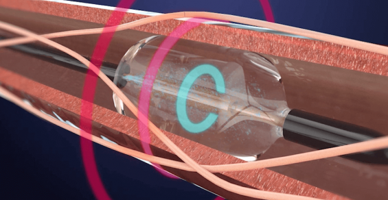 Is This the Turning of the Tide for Renal Denervation?