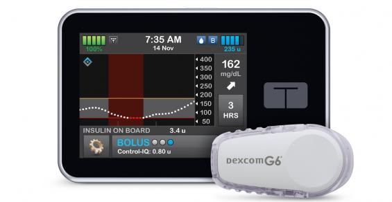 Tandem's New Clearance Strengthens Relationship with DexCom