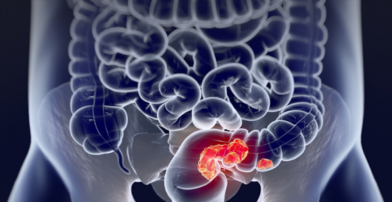 Geneoscopy Touts Study Results for Its At-Home Colorectal Screening Test